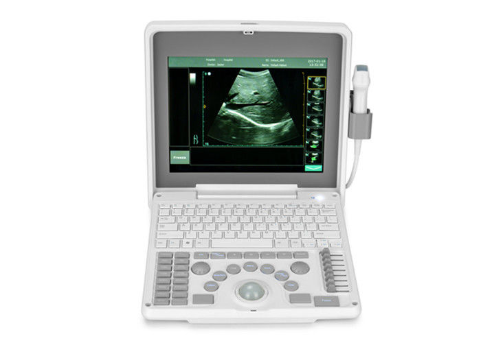 Digital Portable Mobile Laptop Ultrasound Scanner Medical Equipment BIO 3000J With 1.12 Inch LED Screen