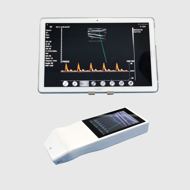 Longlife Color Doppler Ultrasound Scanner With Built - In 3 Inch Touch Screen